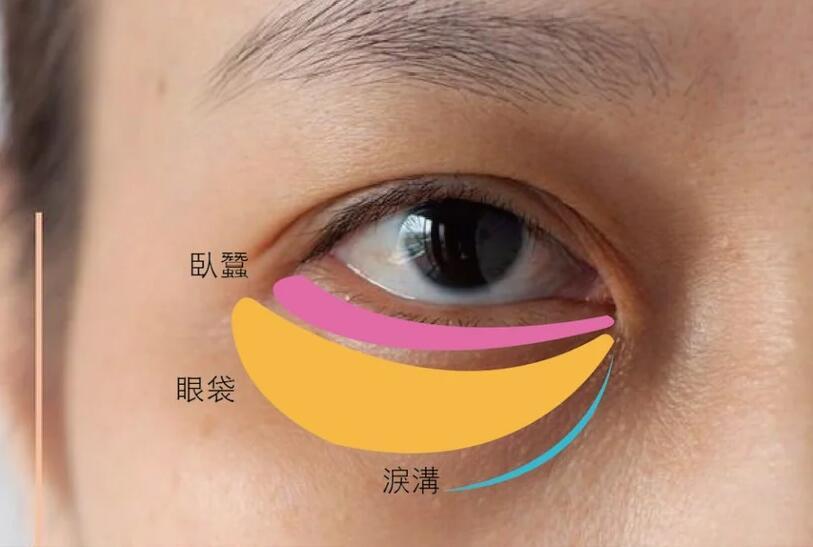 如何分辨淚溝和眼袋