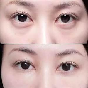 童顏針Derma veil針對性改善及撫平淚溝